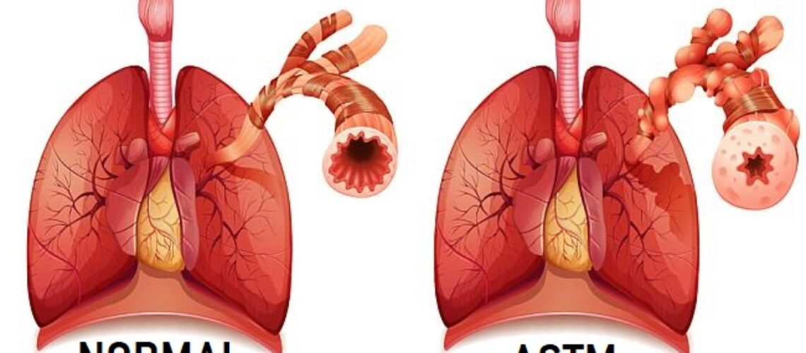 Este corelat astmul cu poluarea urbană?